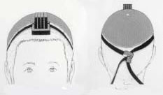 Placement of head-tefillin: Front and back view.